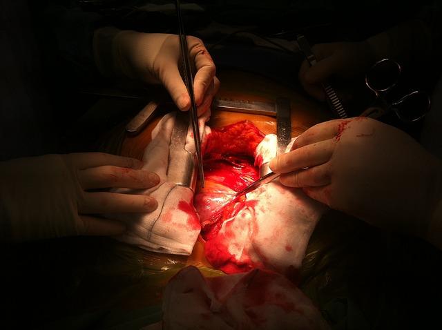Az ima segített a szívműtét során - Monika története